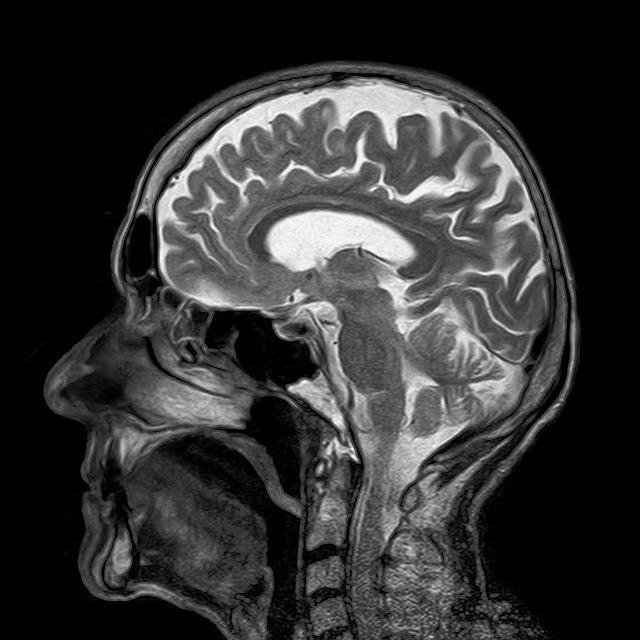 小児のMRI鎮静における塩酸デクスメデトミジン(プレセデックス)点鼻の有効性: ランダム化比較試験