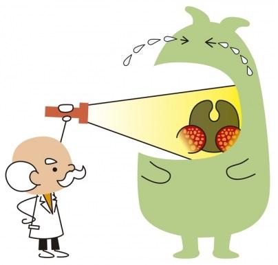 アデノイド扁桃摘出術は、術後の咽頭炎を減らすのか?
