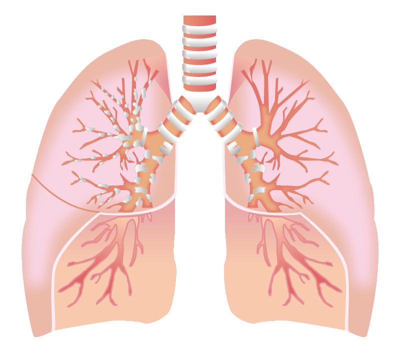 気管支サーモプラスティの組織学的変化は、臨床症状と相関するか?