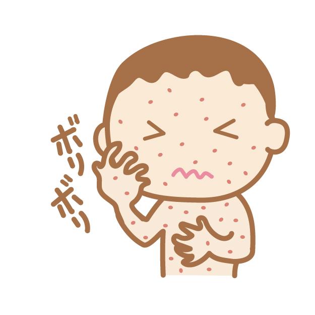 中等症以上のアトピー性皮膚炎があると、中途覚醒が多い
