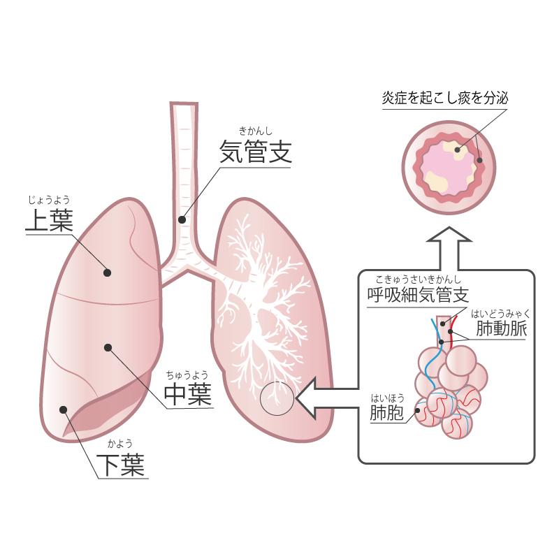 海外基準の軽症喘息でも、吸入ステロイド薬は使用すべきかもしれない