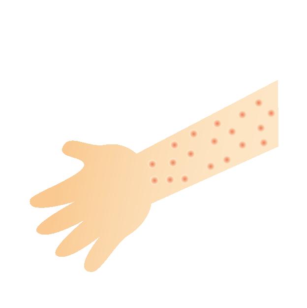 慢性蕁麻疹に対するザイザルとデザレックス、どちらがより有効か?