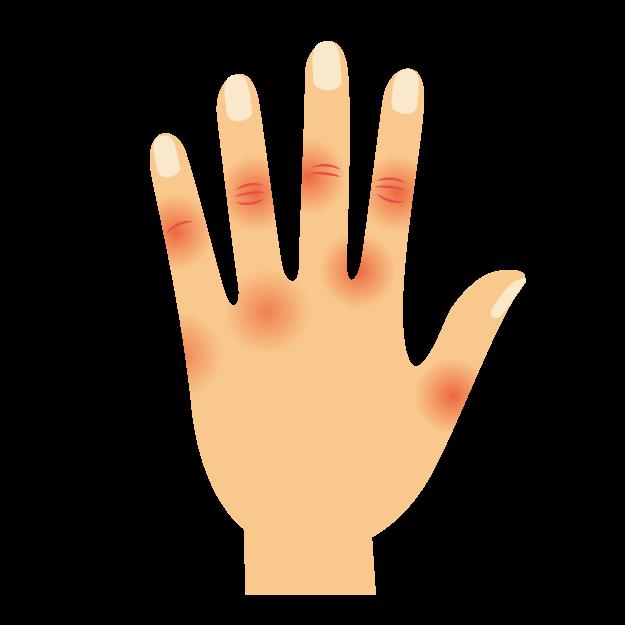 アトピー性皮膚炎に、手湿疹はどれくらい合併するか?