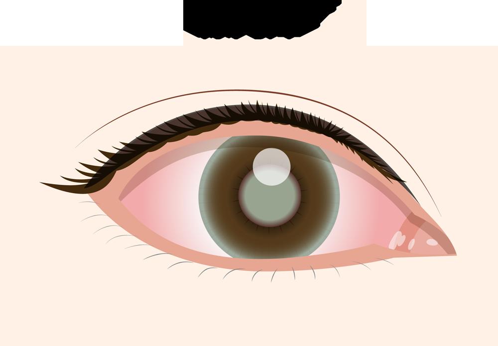 顔(眼瞼)へのステロイド外用薬は、眼圧をあげるのか?