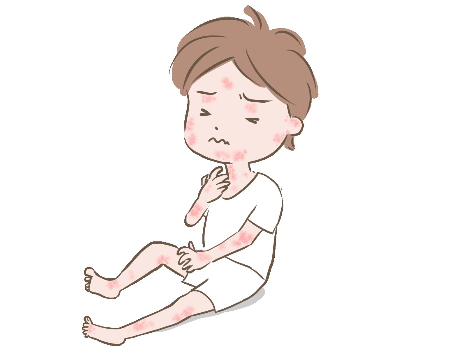 プロアクティブ療法(保湿剤定期塗布とステロイド外用薬の間欠塗布)で小児アトピー性皮膚炎の再燃が減る