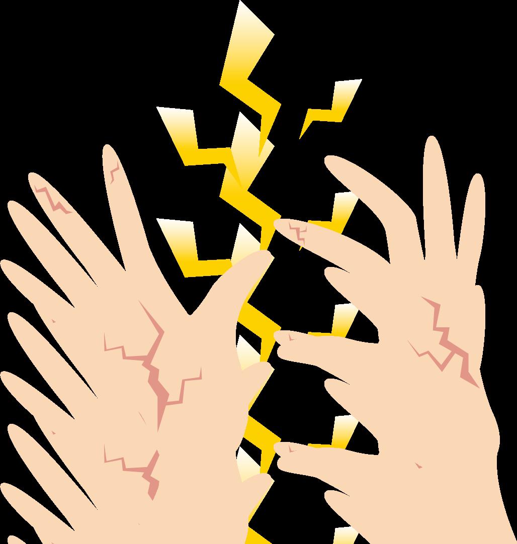 手湿疹に対し、ステロイド外用薬と同様にプロトピック外用薬も有効かもしれない