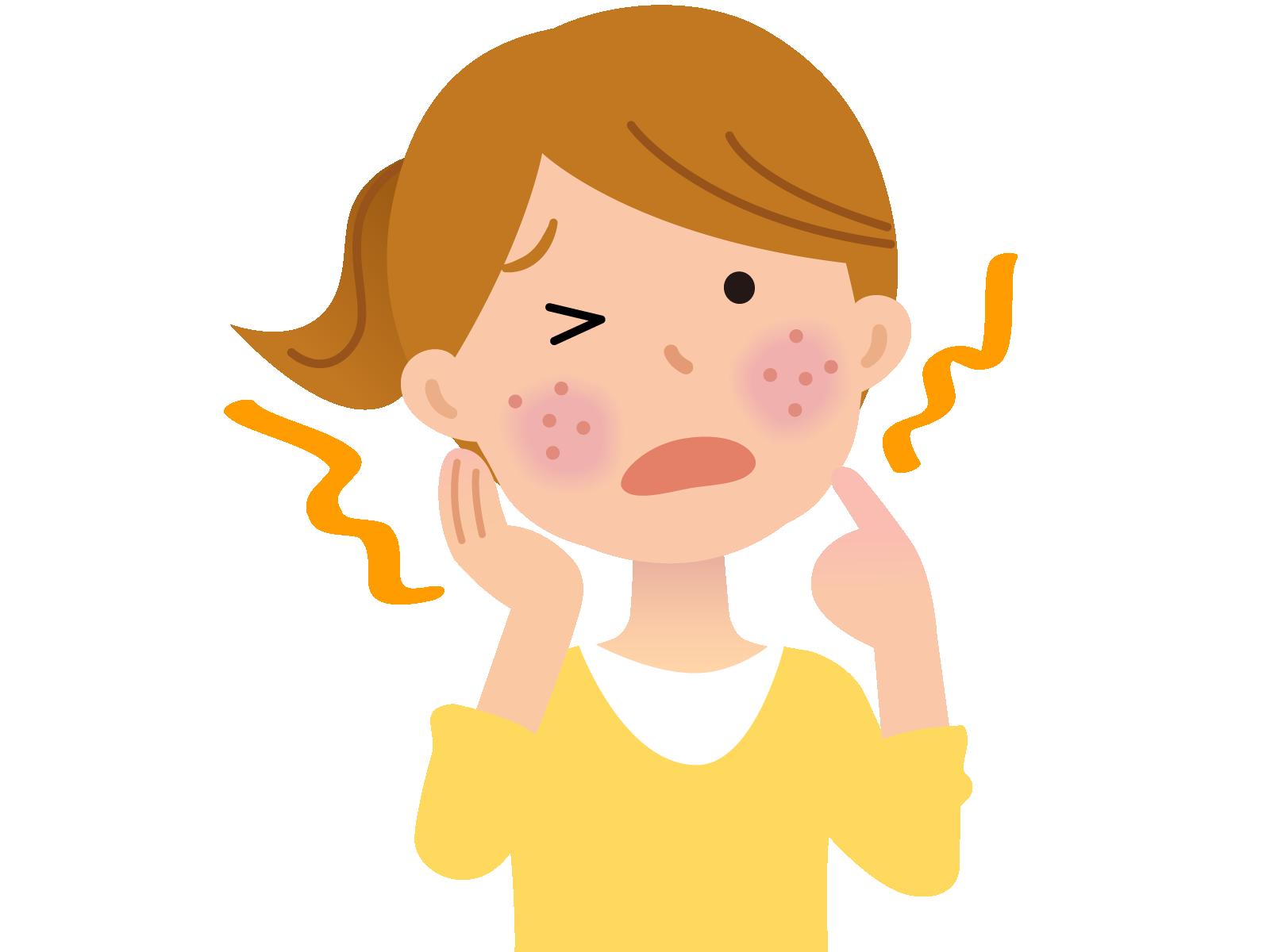 ヒスタミン H4受容体 拮抗薬は、痒みを軽減するものの好中球減少のリスクがある