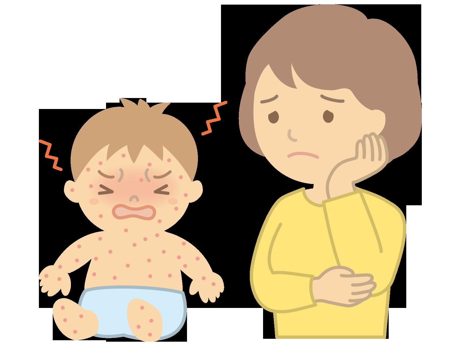 掻きぐせに対する行動科学的アプローチは、アトピー性皮膚炎の改善を促進する