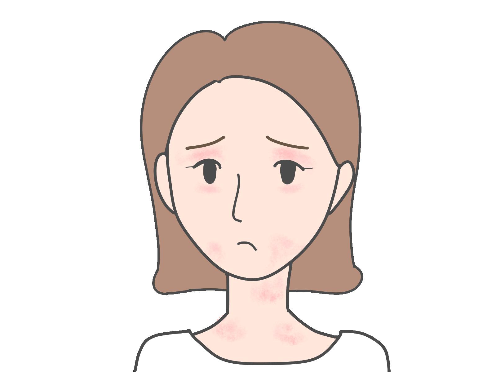 アレグラはアトピ—性皮膚炎の痒みを軽減する