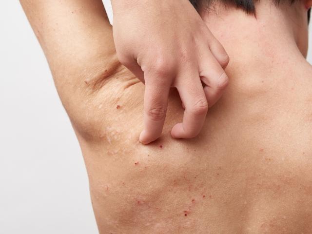 デュピルマブは、炎症性マーカーを低下させつつアトピー性皮膚炎の疾患活動性も次第に改善する
