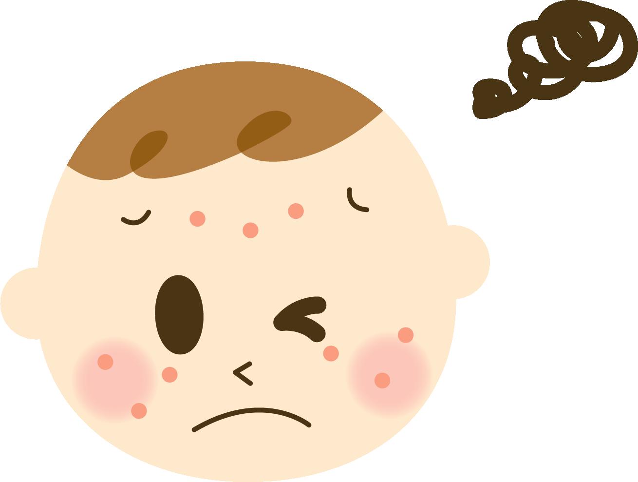 乳児期のアトピー性皮膚炎はその後の喘息や鼻炎の発症と強く関連している