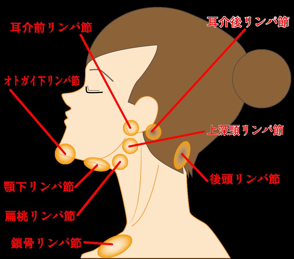 頸部のリンパ節に対する、経リンパ節免疫療法の初報告