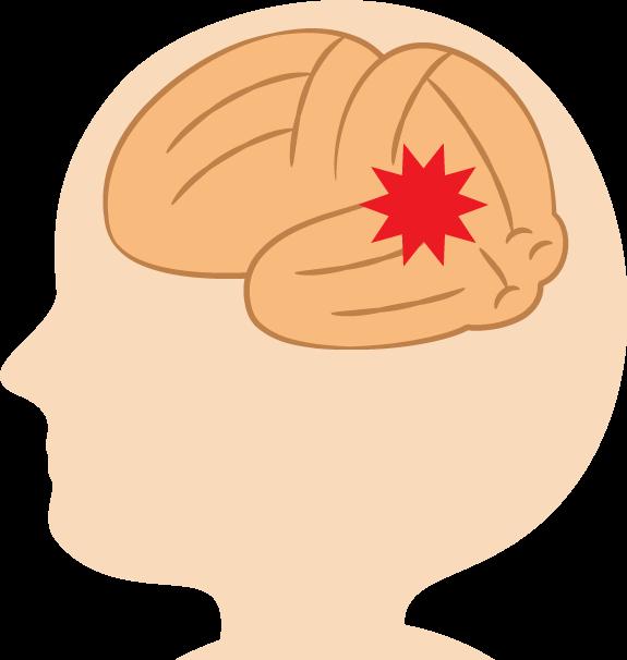 新生児期のビタミンKの不使用は、出血リスクを上げ頭蓋内出血も起こすかもしれない