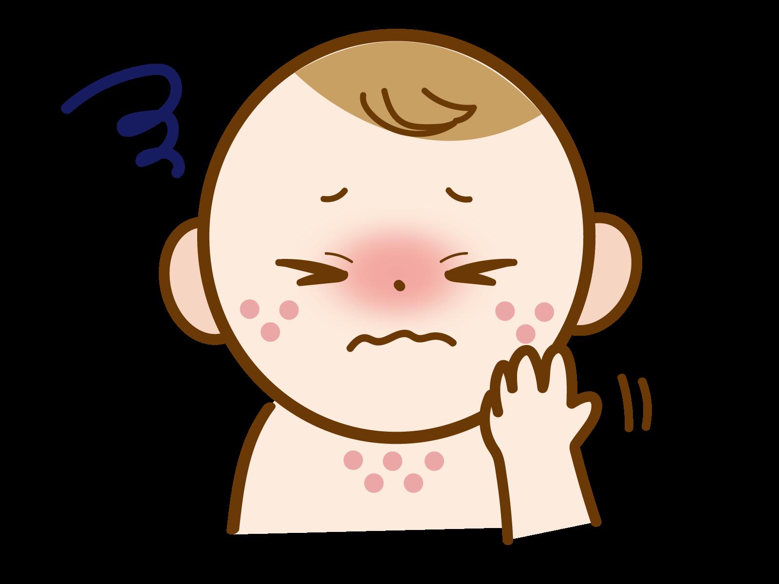 デルゴシチニブ軟膏(コレクチム軟膏)は、2歳以降のアトピー性皮膚炎にも有効で安全である
