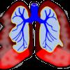 小児喘息治療においても、フルチカゾンにサルメテロール追加は重大なリスクを増加させ